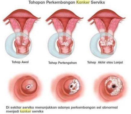 foto kanker serviks stadium 4, kanker serviks, cara mengobati kanker serviks, apa itu kanker serviks, kanker serviks bisa hamil, obat tradisional kanker serviks.